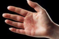 betegség, izzadás, kéz, meleg, nyár, tenyér