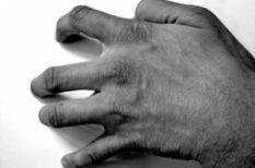betegség, kéz