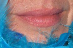 bőrbetegség, hajhullás, hormonális