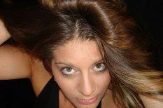 hajhullás, hajhullás kezelése, hajhullás okai, orvosi tanácsok