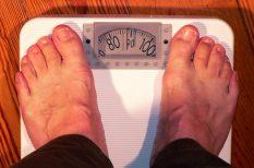 elhízás, pikkelysömör, súlyfelesleg