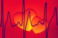 pajzsmirigy, szív és érrendszer, szívdobogás