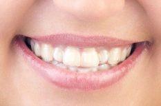 ajándék, fogfehérítés, fogorvos, fogszabályozás, láthatatlan fogszabályzó