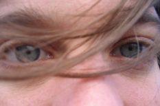 betegség, szem, szűrés, vizsgálat, zöldhályog