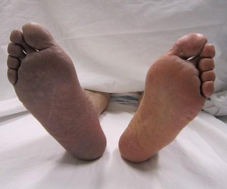 Trombózisos láb, Kép: wikimedia