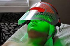 arcápolás, arctorna, fényterápuia, megelőzés, öregedés, szarkaláb