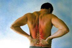 csontkovács, derék, fájdalom, fizioterapeuta, gyógytornász, ortopéd orvos