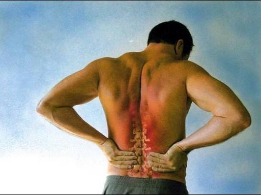 Gerincfájdalom, Kép: sajtóanyag