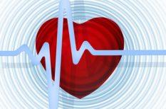 EKG, kardiológia, szív, szívritmuszavar, vérnyomás