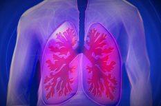 diagnózis, idiopathiás tüdőfibrózis, kutatás, OEP, támogatás, terápia, tüdőbetegség