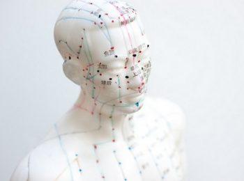 akupunktúra, energiaármalás, fájdalom, fájdalomcsökkentés, kezelés