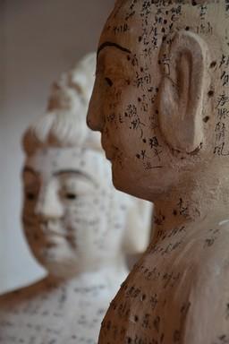 Akupunkturális pontok, Kép: fájdalomközpont.hu