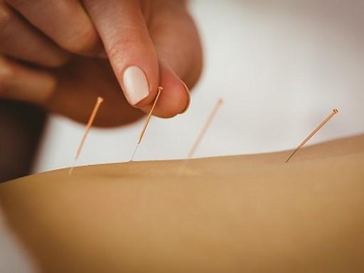 Akupunktúra, Kép: fajdalomkozpont.hu