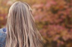 bor, haj, hajhullás, problémák, Stria, terhesség, terhességi csíkok